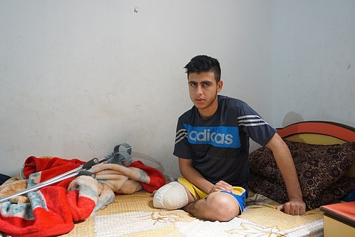 Mohammed al-Ajouri. Right leg amputated after he was shot and injured by Israeli forces during a demonstration in Gaza on 30 March.
